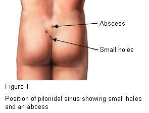 Position of pilonidal sinus showing small holes and an abcess